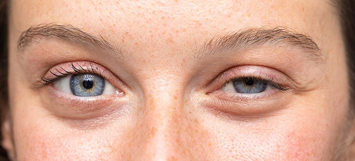 Using an eyelash curler every day can increase the risk of an eye infection