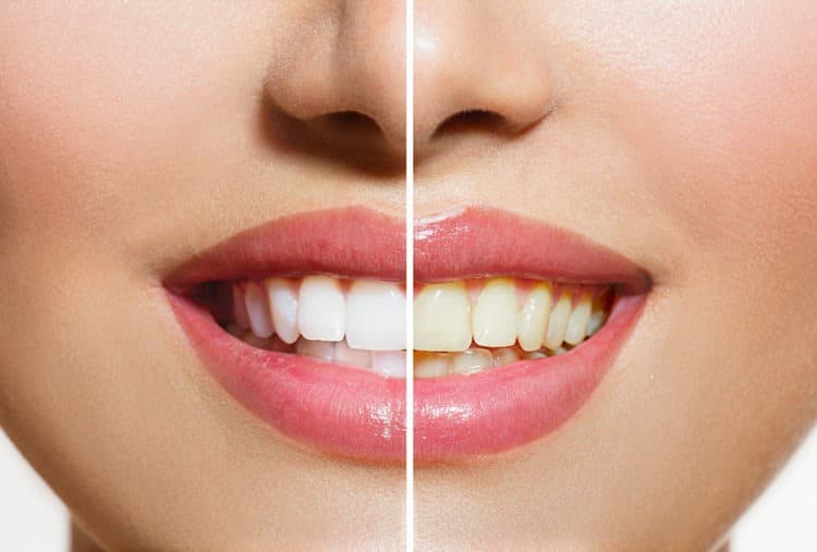 Picture divided in half showing a before and after picture of yellow teeth turning white