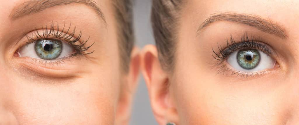 26 Ways to remove dark circles and under eyes bags